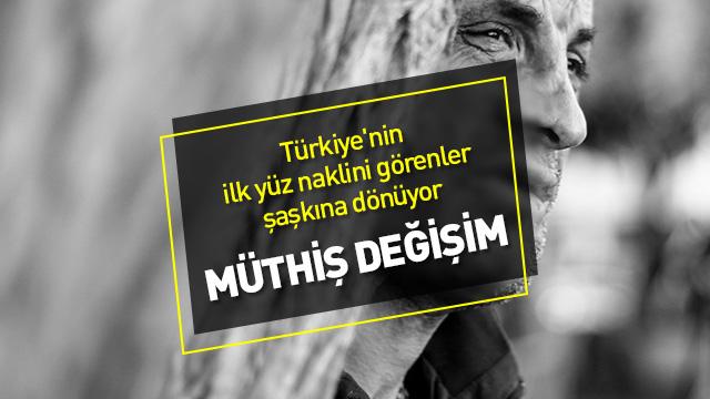 Türkiye'nin ilk yüz naklini görenler şaşkına dönüyor