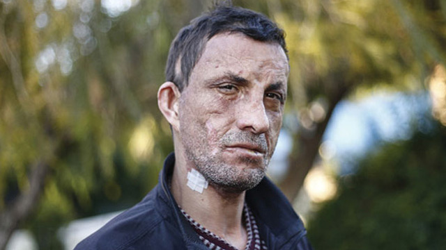Türkiye'nin ilk yüz nakli olan Uğur Acar'ı görenler şaşkına dönüyor