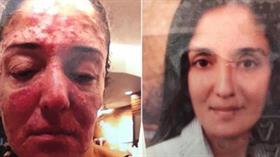 Ünlü iş adamı yanında çalışan kadının yüzüne kezzap attı