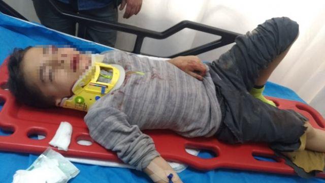 Okulda feci kaza: Mazgalla birlikte boşluğa düşen çocuk yaralandı